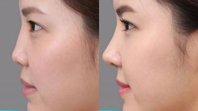 Nâng mũi giúp bạn sở hữu chiếc muic cao, thanh thoát, mềm mại tự nhiên