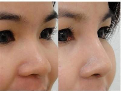 Nâng mũi bằng chỉ Ultra giúp bạn sở hữu chiếc mũi cao đep, mềm mại