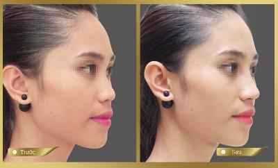 Nâng mũi bằng chỉ Ultra không cần phẫu thuật, không đau