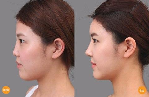 Nâng mũi giúp khắc phục khuyết điểm mũi tẹt, mũi thấp