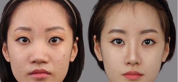 Độ tuổi bao nhiêu thì có thể đi nâng mũi?