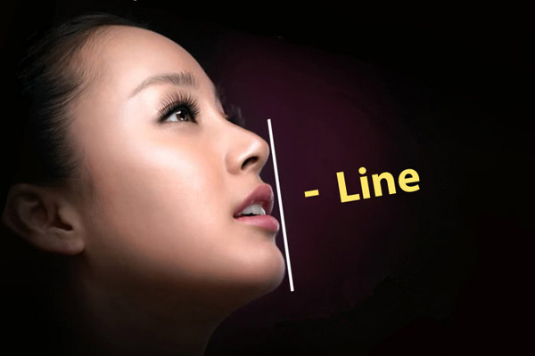 Nâng mũi  L-line  2 lớp Double-L  có phải phẫu thuật không?