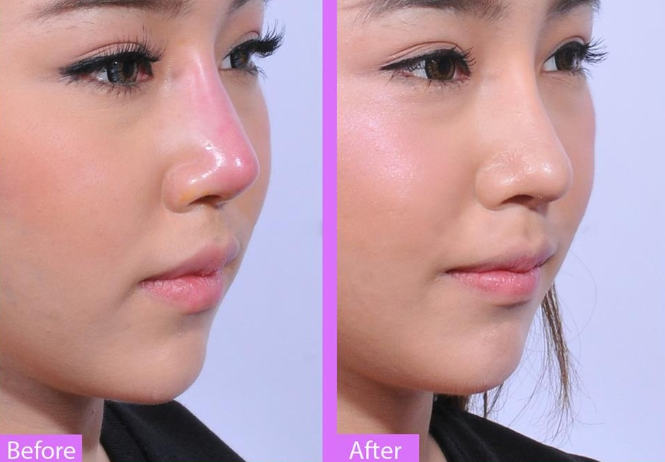 Sửa mũi hỏng giá bao nhiêu tiền?