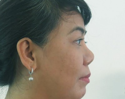 Xem tướng số của người mũi hếch