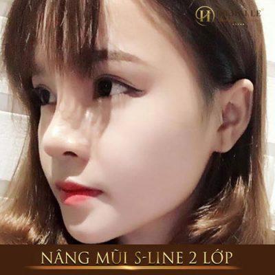Phẫu thuật nâng mũi S Line Dr. Hải Lê