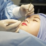 Đi tìm lời đáp cắt chỉ sau khi nâng mũi có đau không?