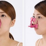 Thu gọn cánh mũi không cần phẫu thuật-Cách nào hiệu quả?
