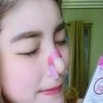 Kẹp nâng mũi nose up – Những nguy hại rình rập