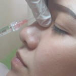 Bật mí về nâng mũi aquamid