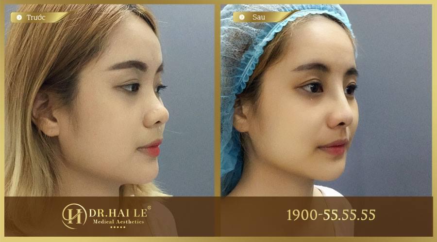 Bạn Khánh Linh 26T nâng mũi Medi Form