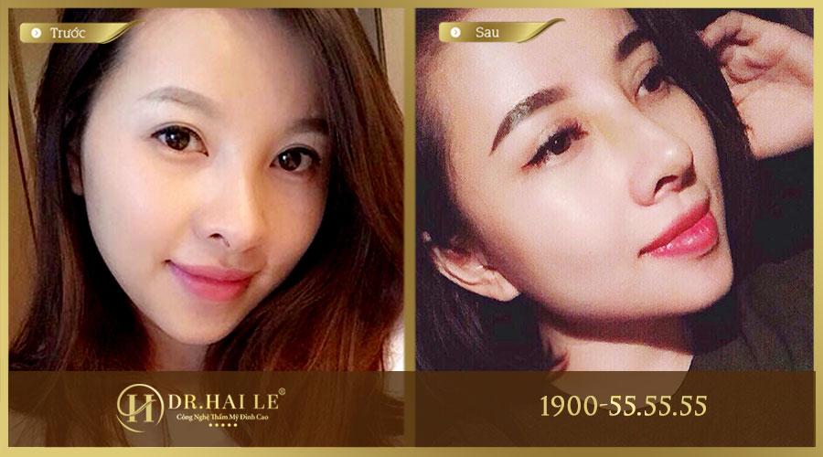 Khách hàng trước và sau khi nâng mũi Demi -5D tại Dr. Hải Lê