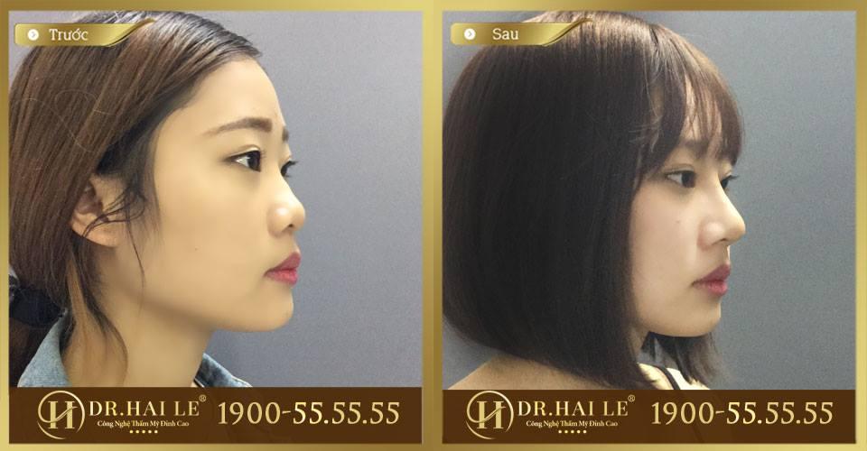 Hình ảnh khách hàng trước và sau khi nâng mũi Demi-5D tại Dr.Hải Lê