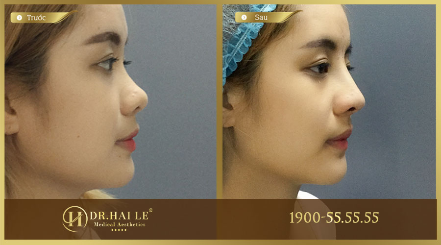 Hình ảnh trước và sau của khách hàng khi thực hiện nâng mũi tại Dr.Hải Lê