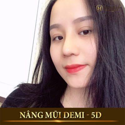Phẫu thuật nâng mũi Demi 5D Dr.Hải Lê