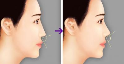 Cách thu nhỏ lỗ mũi bằng filler siêu nhanh