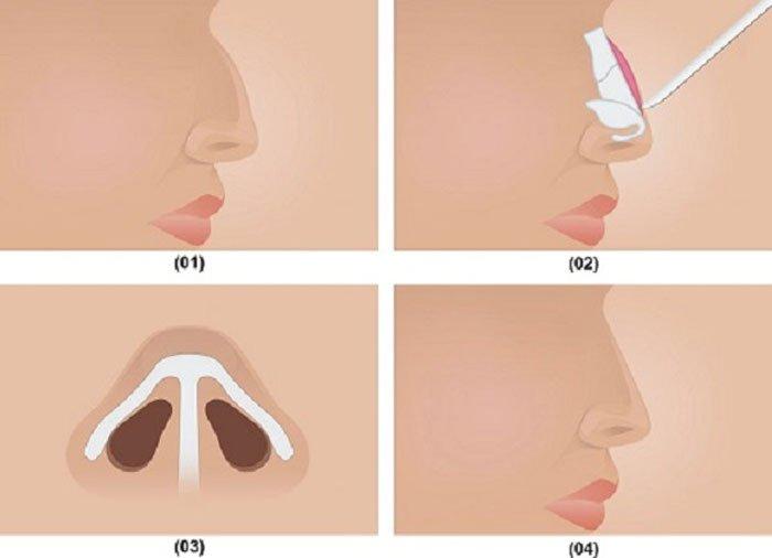 Mũi La Mã 1