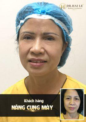 Nâng cung mày tại Dr.Hải Lê