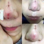 Nâng mũi bị nổi cục phải làm thế nào?