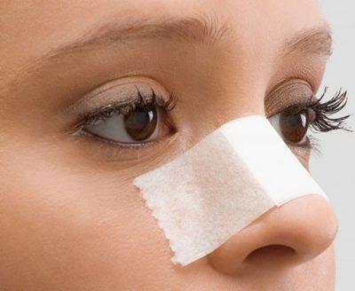 nguyên nhân nâng mũi bị kéo mắt