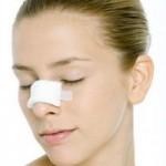Cắt cánh mũi có đau không? Những giải đáp hữu ích