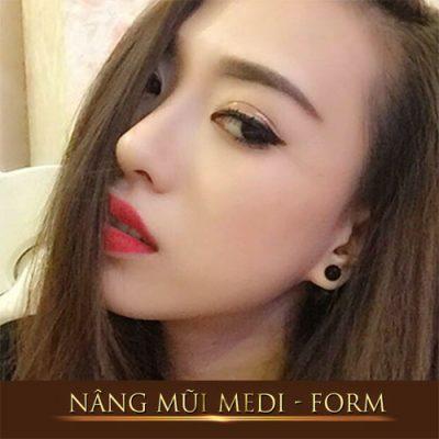 Phẫu thuật nâng mũi Medi Form Dr. Hải Lê
