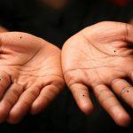Vị trí nốt ruồi ở lòng bàn tay nói lên điều gì?