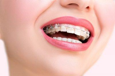 uá trình niềng răng, độn cằm sẽ không ảnh hưởng gì đến sức khỏe của bạn.